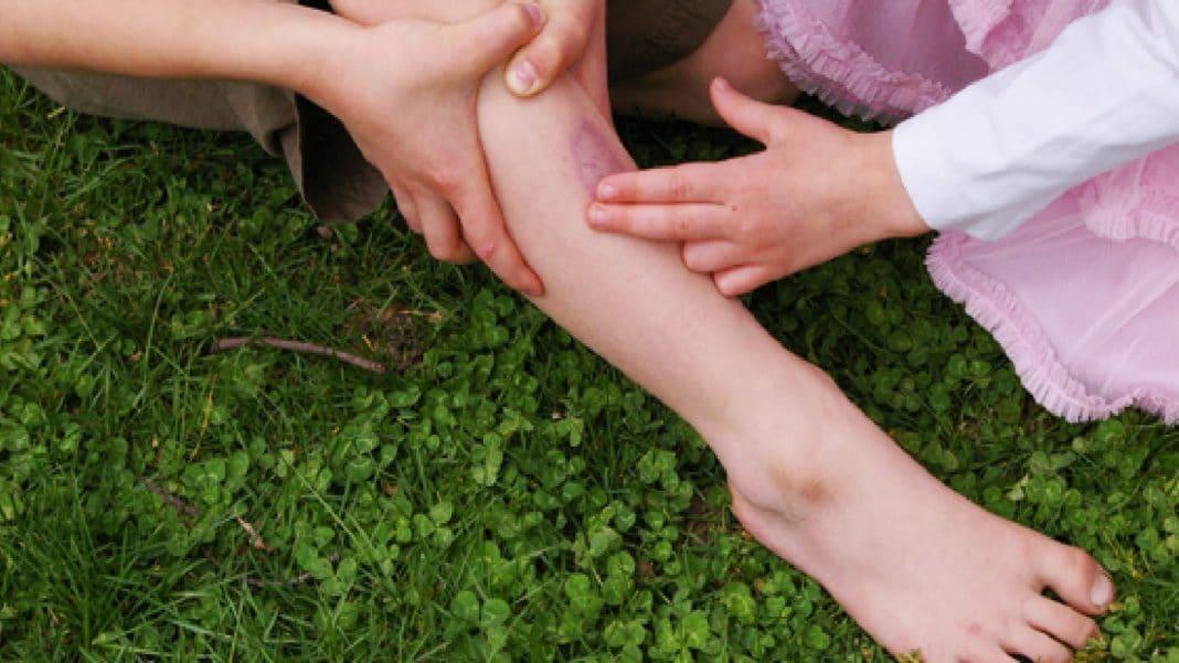 Сильный ушиб ноги, гематома. Что делать и как правильно лечить