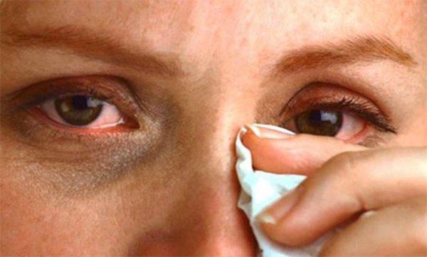 отечность, покраснение и слезоточивость глаз
