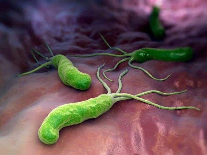 Helicobacter pylor