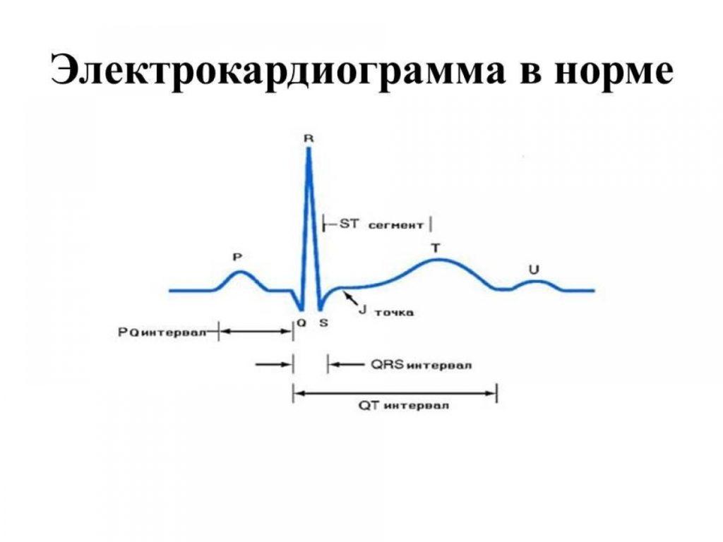 Базовые элементы ЭКГ