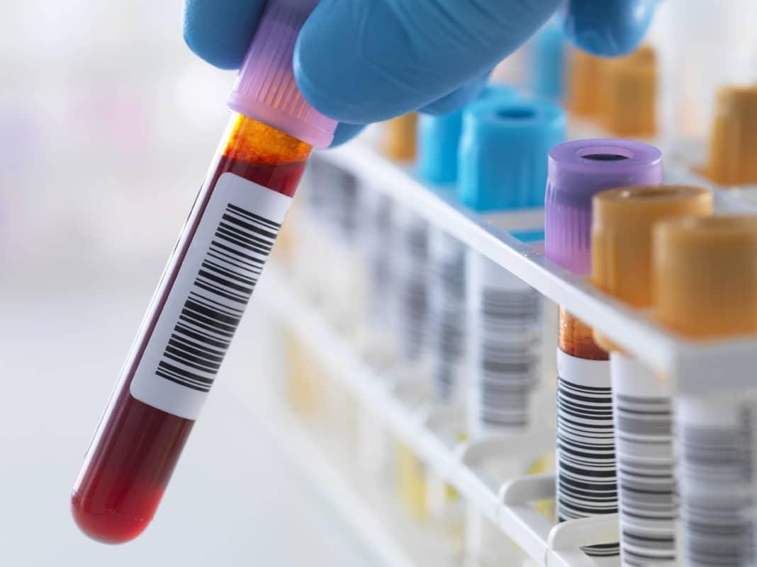 Гемостаз анализ крови