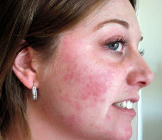 Аллергия на гиалуроновую кислотыу